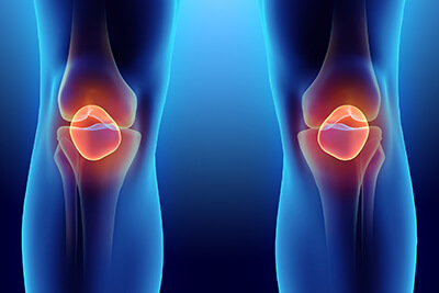 Torn Meniscus Stem Cell Treatment in Newton, MA